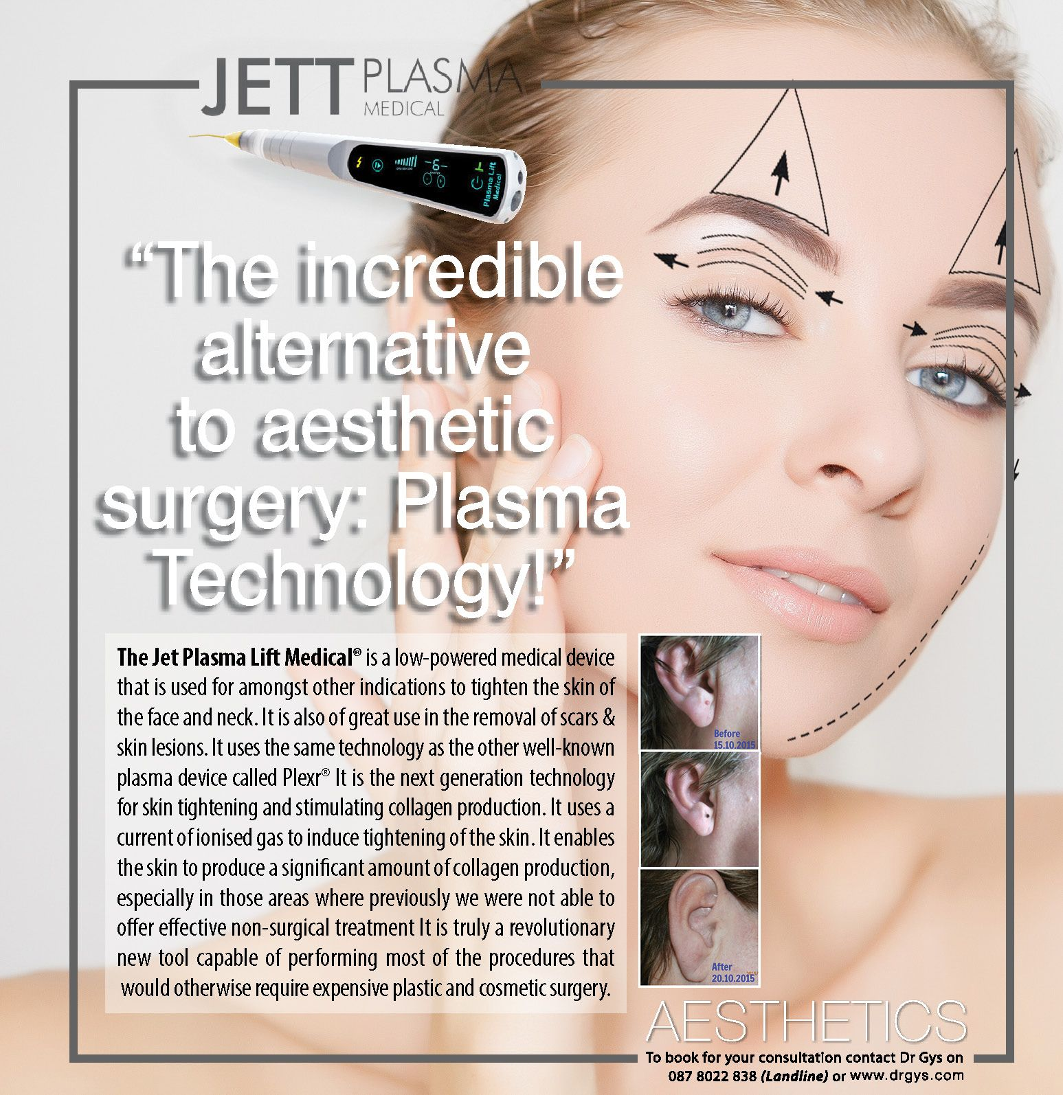 The Incredible Alternative To Aesthetic Surgery Plasma Technology The Jett Plasma Lift Medical Skin Tightening Procedures Skin Tightening Plastic Surgery