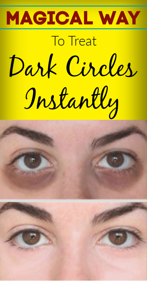 Magical Way To Treat Dark Circles Under Eyes Instantly # ...