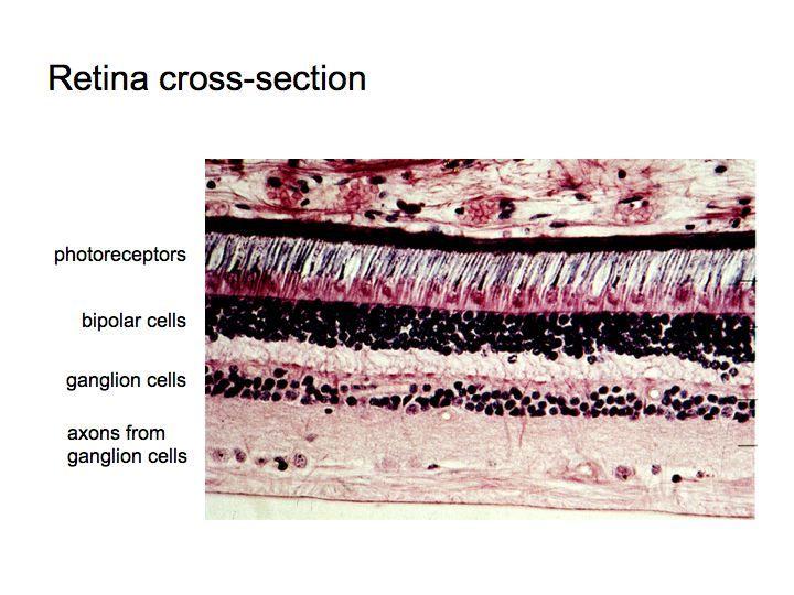 Retina Slide Related Keywords - Retina Slide Long Tail ...