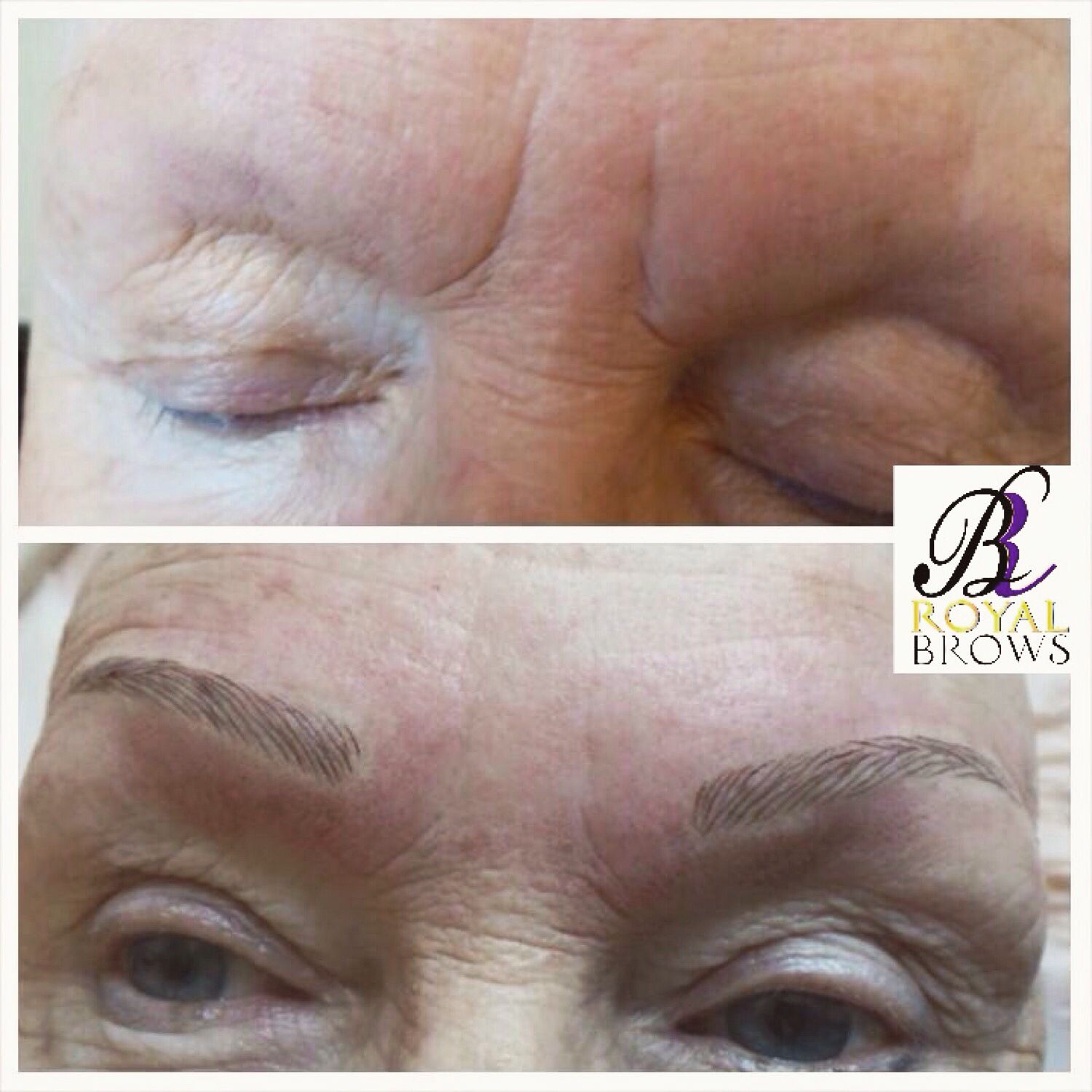 A Before And After Of Royal Brow 3d Eyebrow Embroidery Treatment By