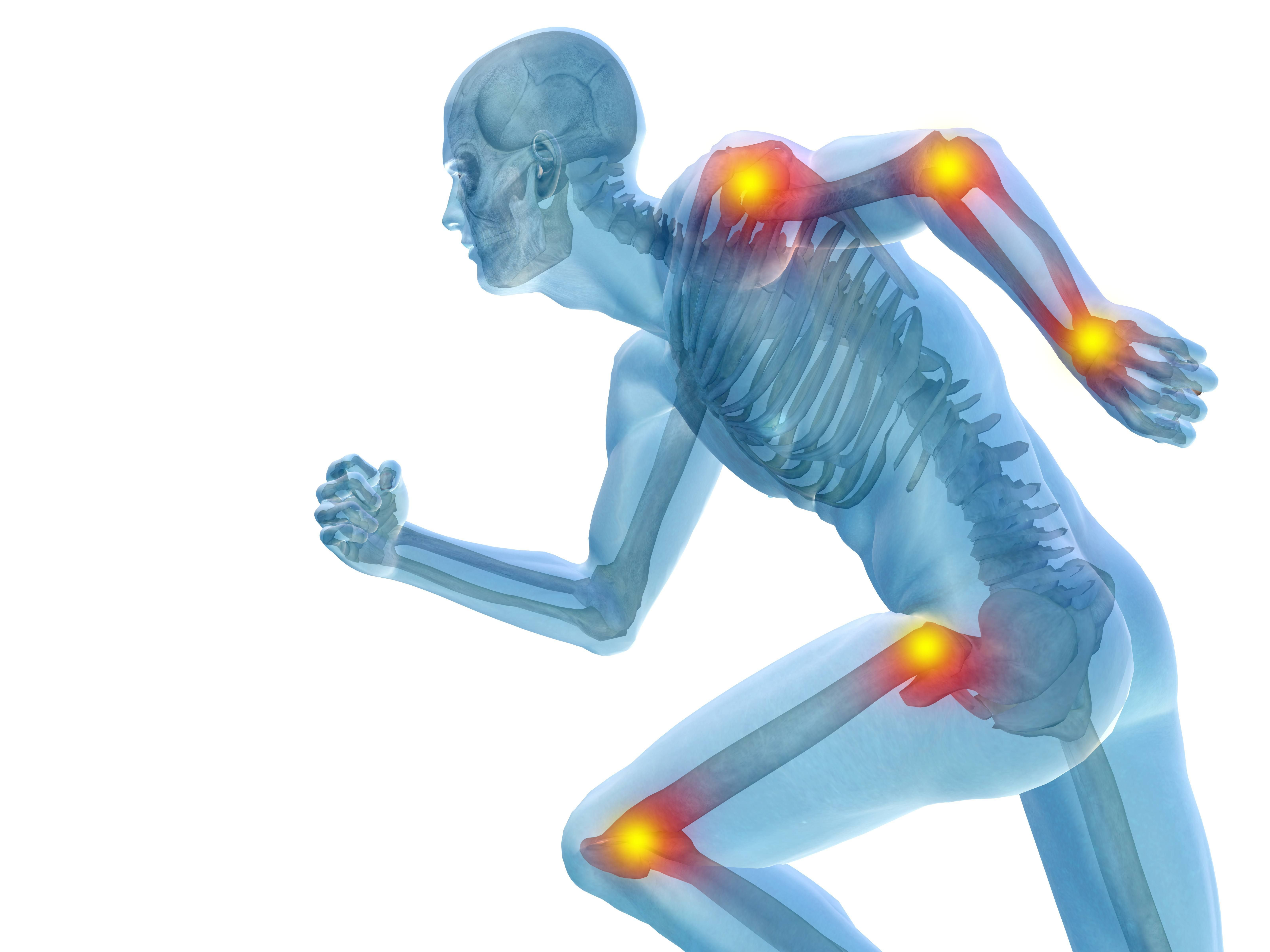 Suplementos Para La Salud De Tus Huesos Y Articulaciones Dolor En Articulaciones Dieta Deportista Articulacion