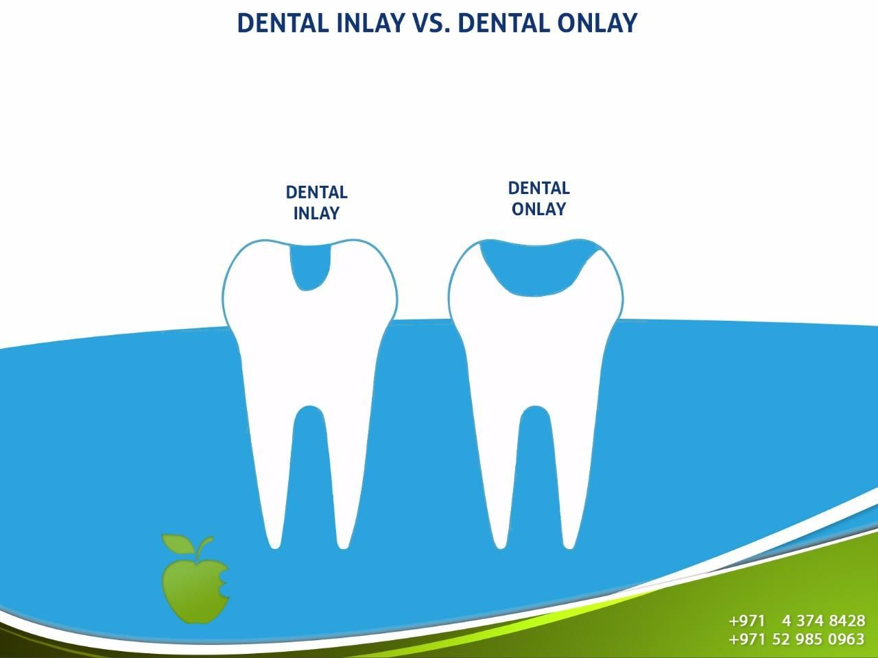 Dental Inlay Vs Dental Onlay Both Of Them Play The Same