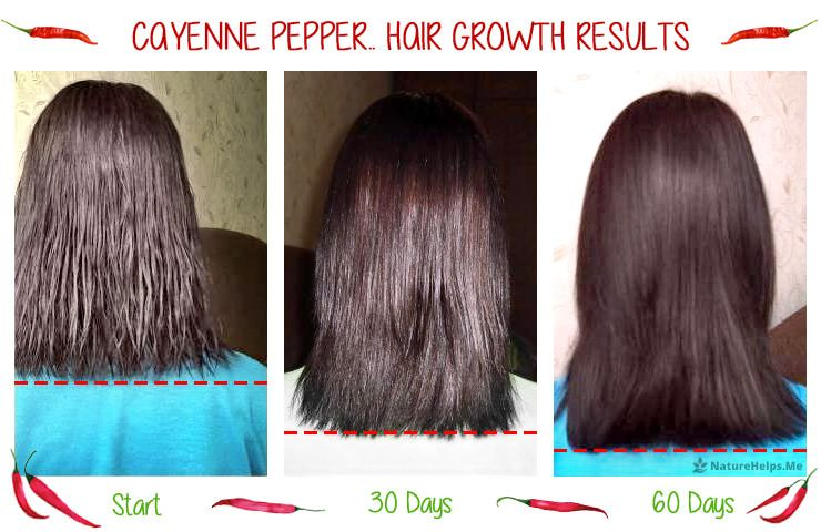 Cayenne Pepper Hair Growth Results Before And After