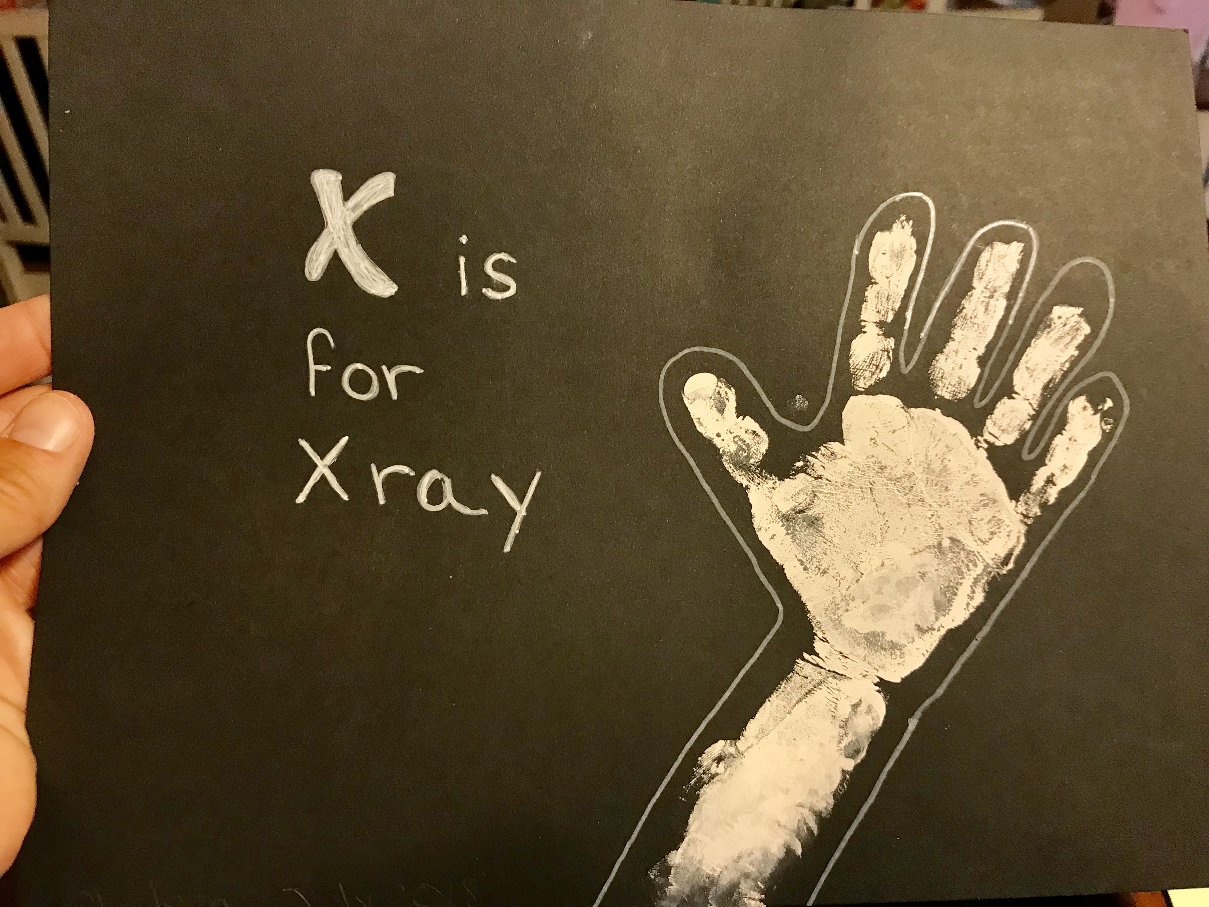 X Is For X Ray Handprint