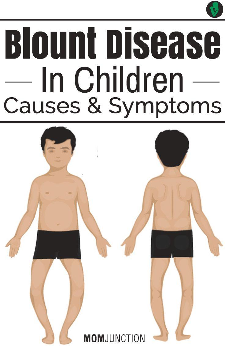 Blount Disease In Children - Causes, Symptoms And Remedies ...