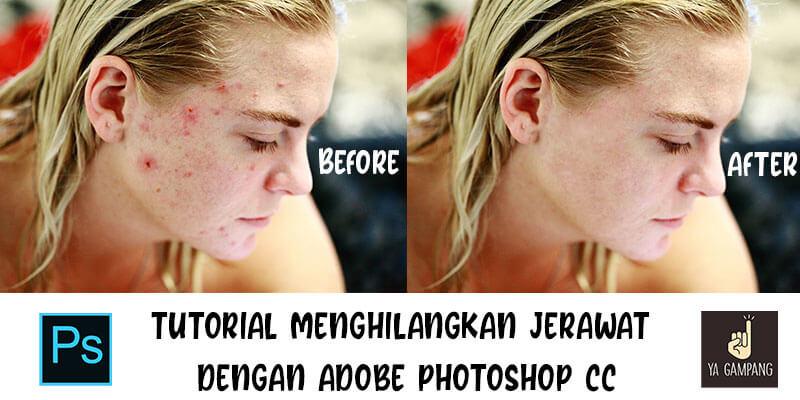 Cara Menghilangkan Jerawat Pada Foto Dengan Photoshop Cc