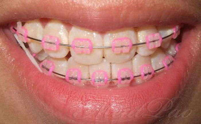 Clear Pink Braces Colors Braces Pinterest Pink