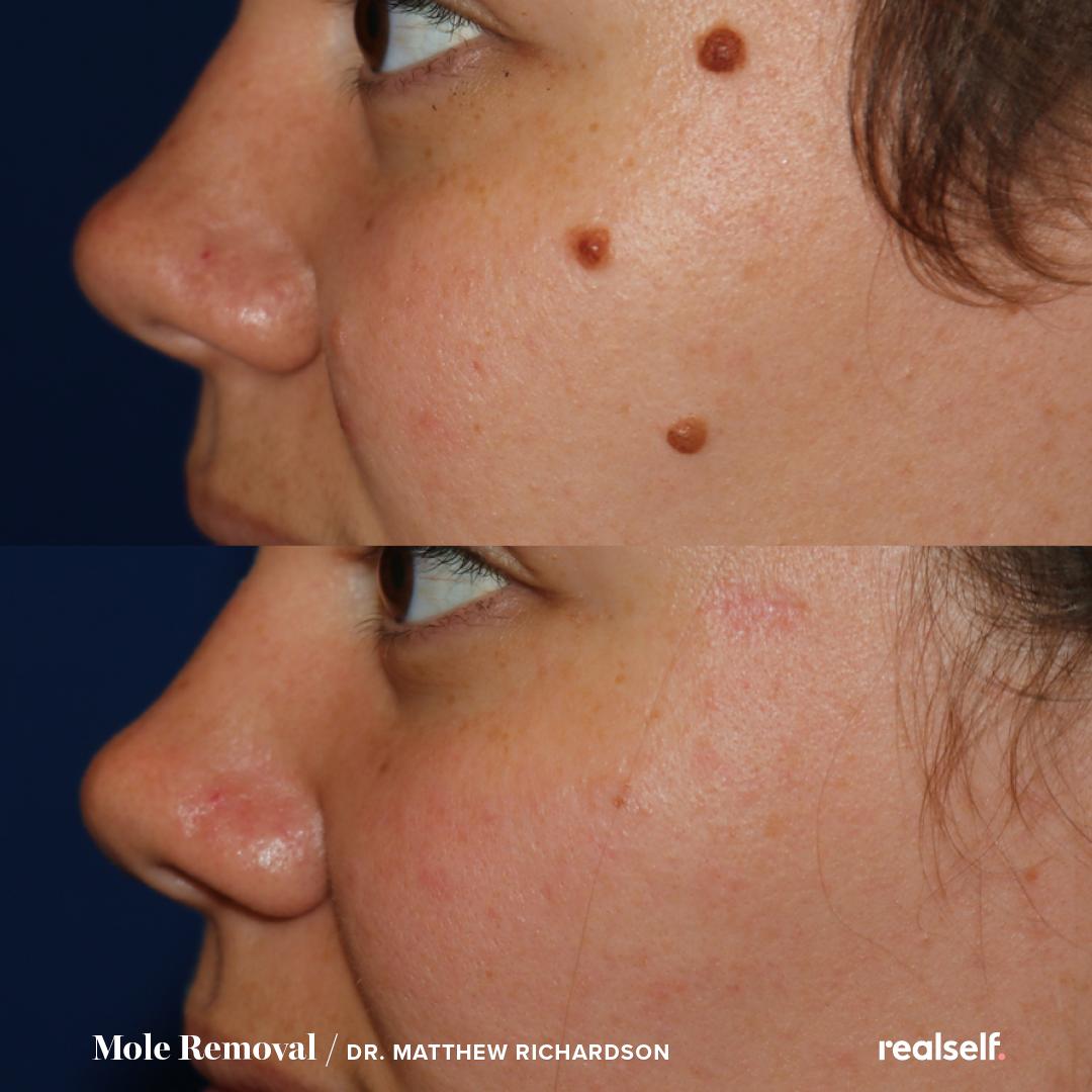 The Best Birthmark Treatments Birthmark Fair Complexion Mole Removal