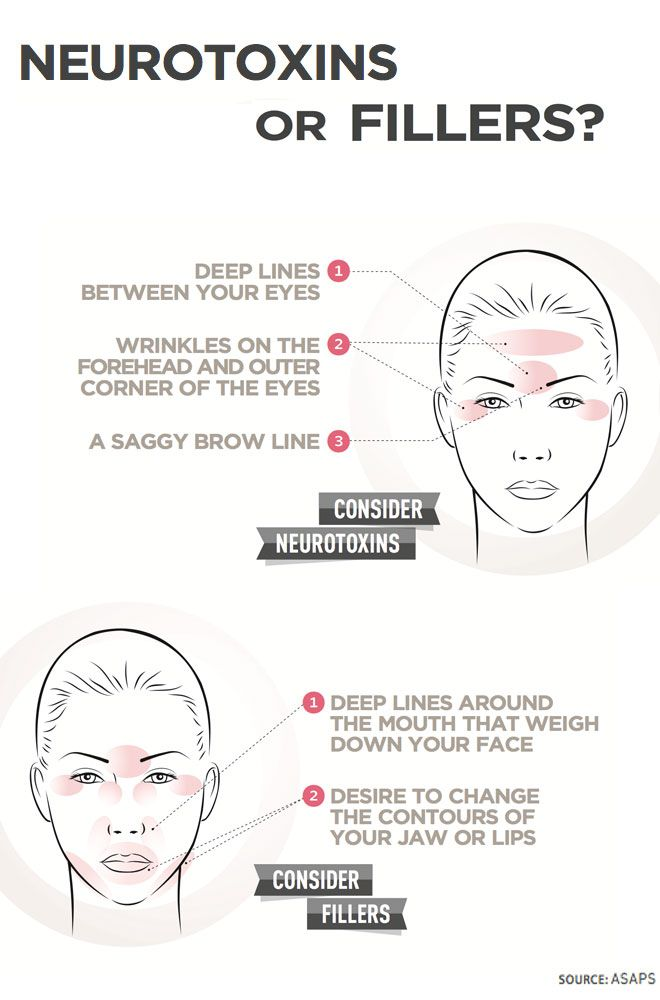 great diagram to work out whether you need #botox #dysport