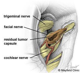 tumor removal