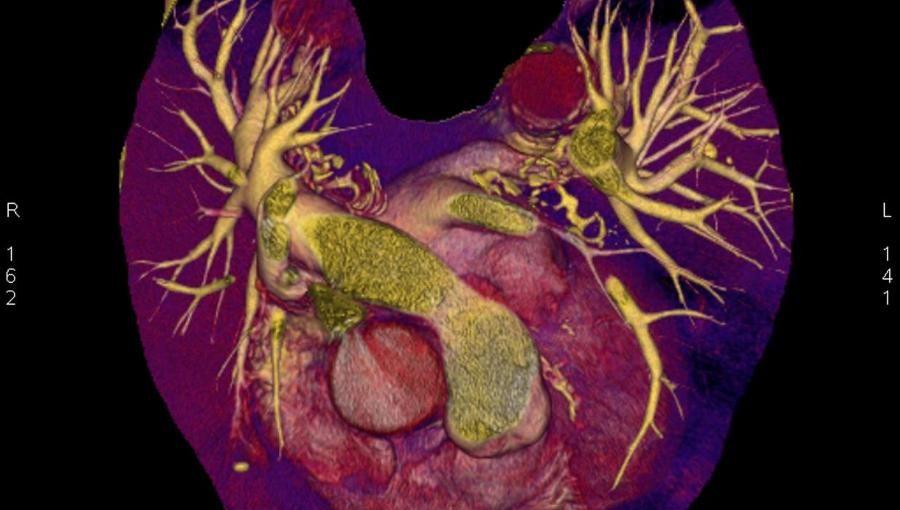 #Warum befällt Krebs fast nie das Herz? - N24: N24 Warum befällt Krebs fast nie das Herz? N24 Kaum eine Krankheit fürchten Menschen so sehr…