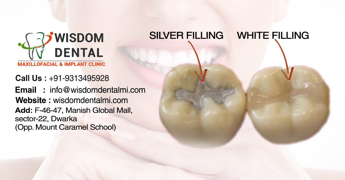 Best Dental Filling White Or Silver Wisdomdentalmi Com Just Call Us At Our Service Desk No 91 9313495928 To Know Mo Dental Fillings Chipped Tooth Dental