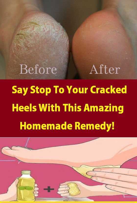 Say Stop To Your Cracked Heels With This Amazing Homemade Remedy!,  #AMAZING #CRACKED #HEELS ... #crackedskinonheels