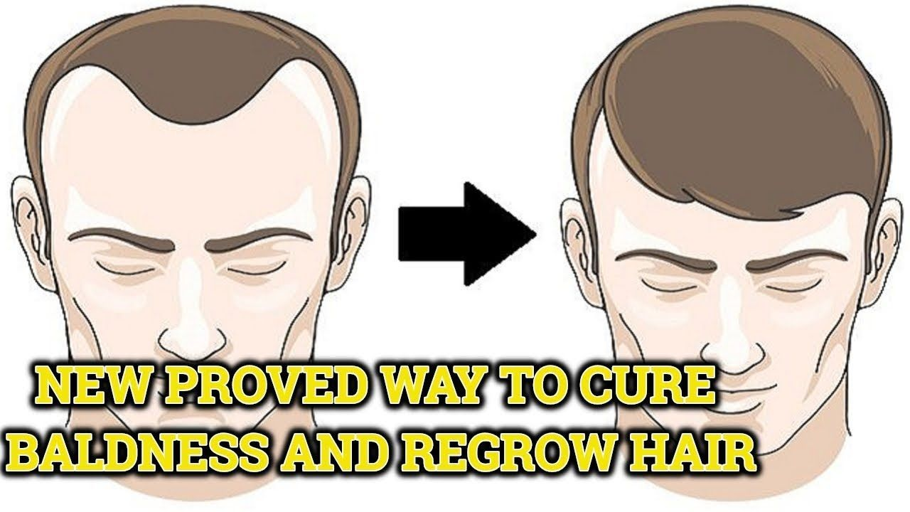 New Proved Way To Cure Baldness Completely And Regrow Hair Naturally