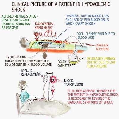 hypovolemic shock how are the hemodynamics effected & why, Skeleton