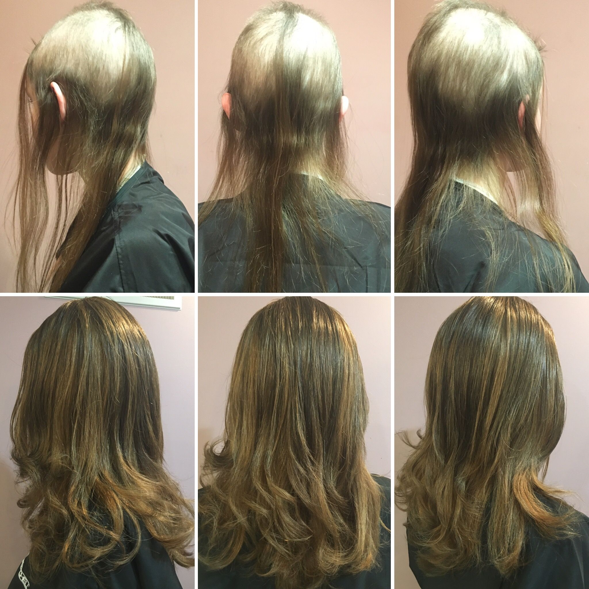 Trichotillomania Pull Free Hair Barriers Kits So Any Child Or Adult