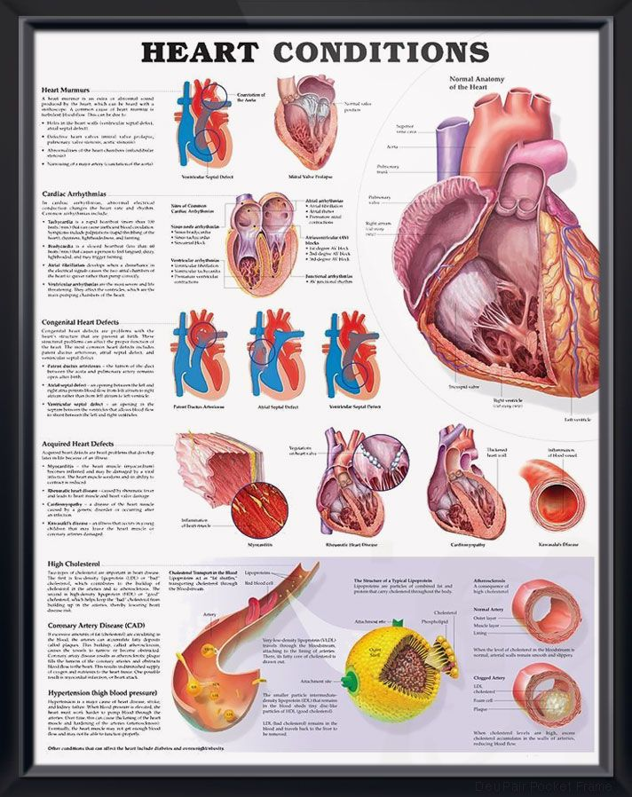 Heart Conditions anatomy poster describes heart murmurs, cardiac ...