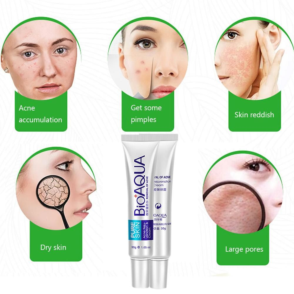 Bioaqua Brand Skin Care Face Acne Treatment Scars Cream Anti Vshaped Mask Sheet V Shaped Shape Removal Gel Shrink Pores