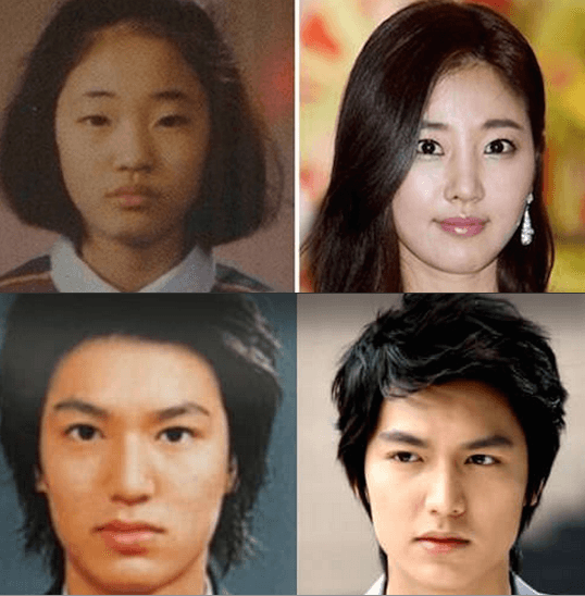 Korean Celebrity Plastic Surgery Koreanplastic Com Celebrity Plastic Surgery Plastic Surgery Celebrity Surgery
