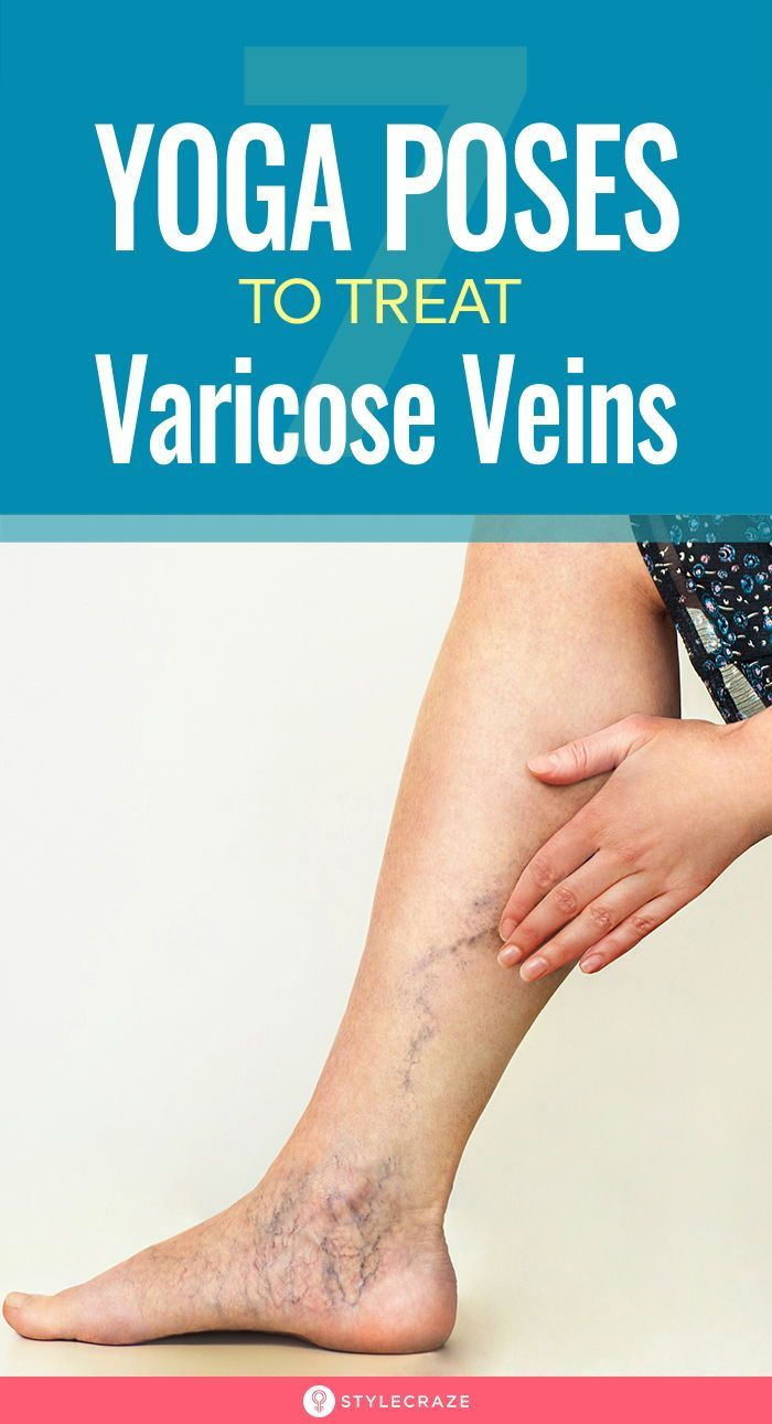 7 Effective Asanas To Treat Varicose Veins: A varicose vein can cause long-term health complications...