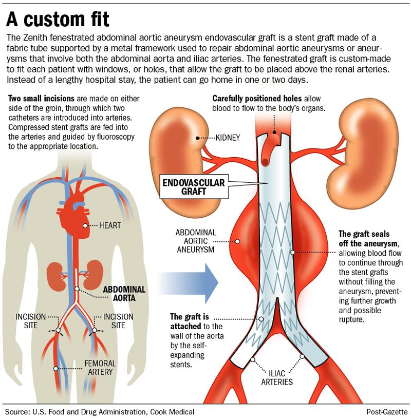 Abdominal Aortic Aneurysm graft. Abdominal aortic aneurysms can ...