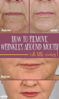 4036d51a825e530bb785474c14700cf5 - How To Get Rid Of Deep Wrinkles On Upper Lip