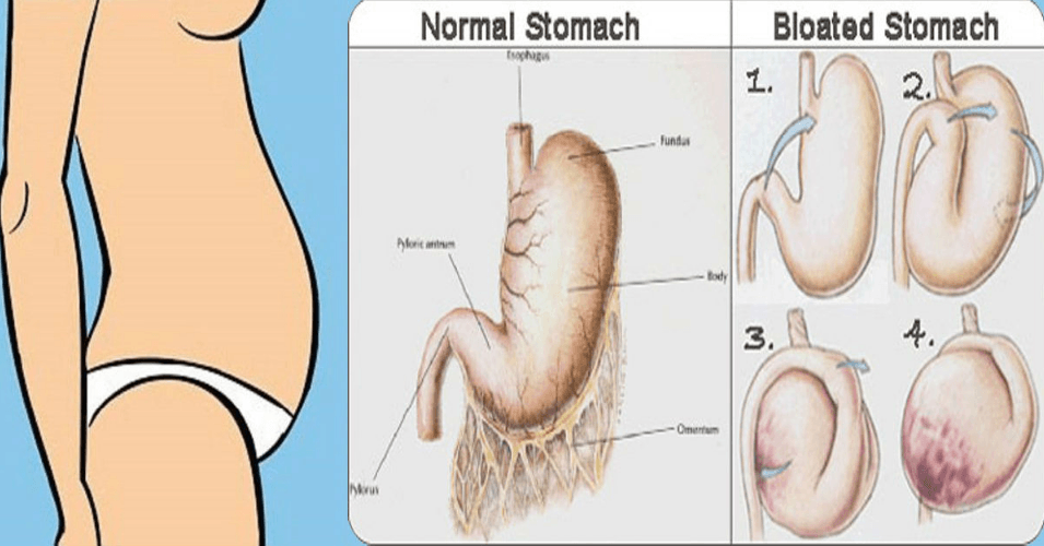 Bloating Is A Symptom Of Some Kind Of Digestive Problem Which Makes Our Belly Look The Size Of A Football According To Colon Cleanse Bloated Belly Cancer Sign