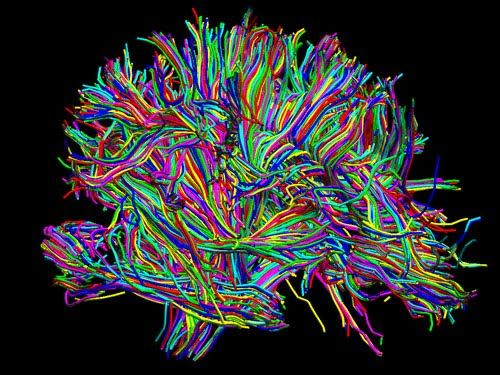 "Mind with ADHD may be ""immature"" in terms of brain wiring ..."