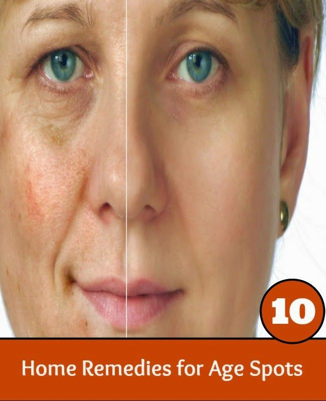 Home remidies for facial age spots