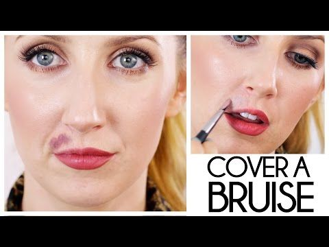 Makeup To Cover Bruises