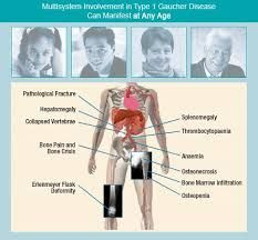 Gaucher Disease Gaucher S Disease Disease Enlarged Liver