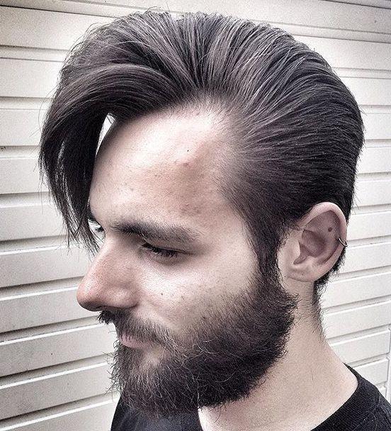 Medium Hairstyle For Receding Hairline