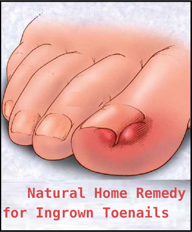 Natural Home Remedy for Ingrown Toenails | Remedies, Natural and ...