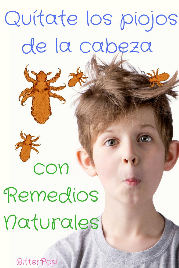 remedios naturales para prevenir piojos