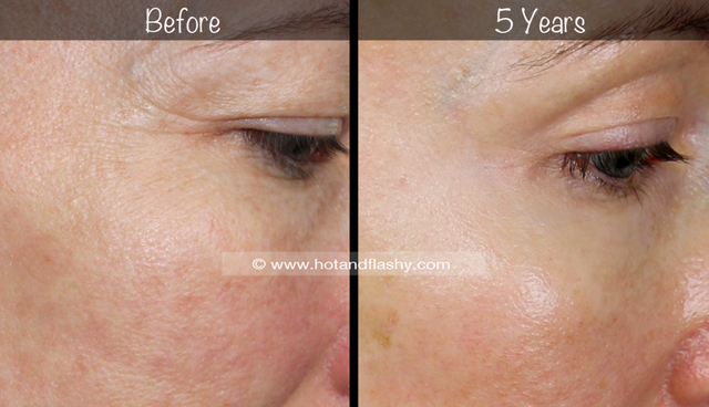 5 Year Retin A Results Before After For Wrinkles Anti Aging Hot Flashy Bloglovin Forehead Wrinkles Cheek Fillers Topical Treatments