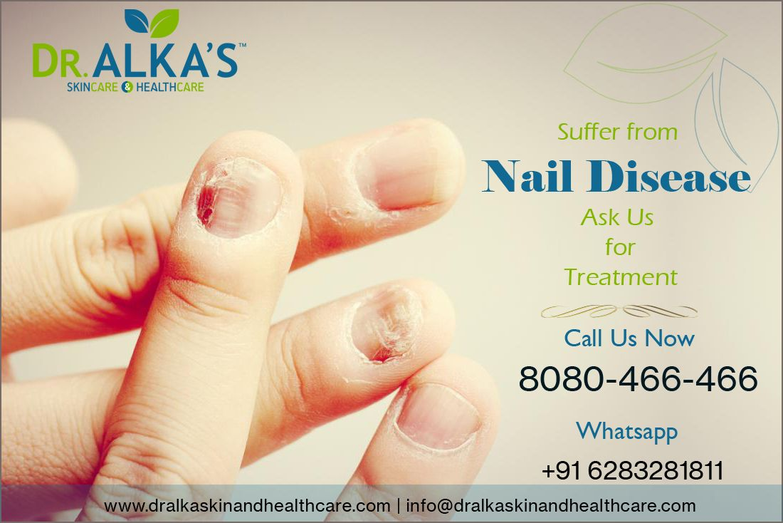 Nail Disease Skin Care Nails Hair Care