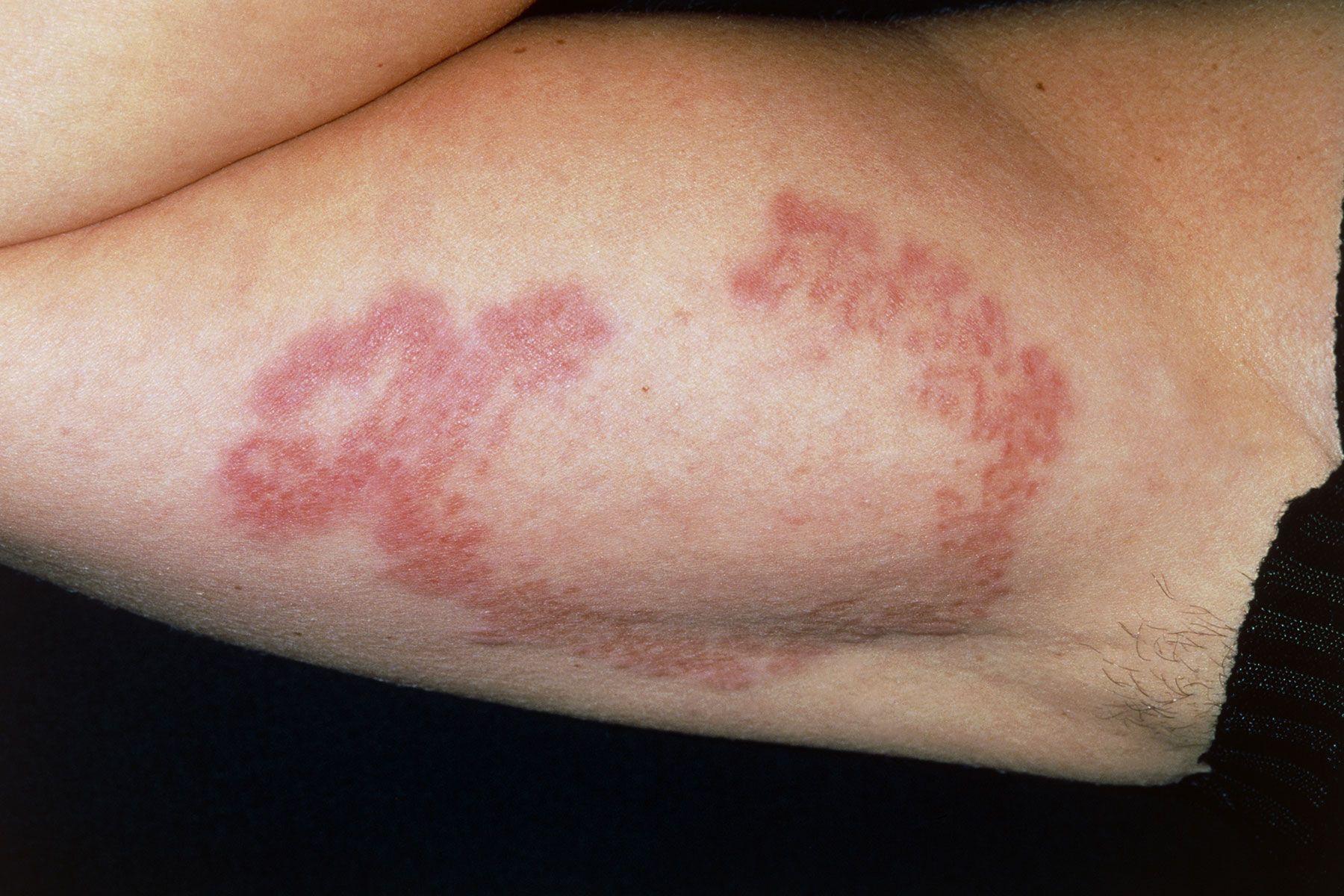 Slideshow: Skin Problems Linked to Diabetes | Skin ...