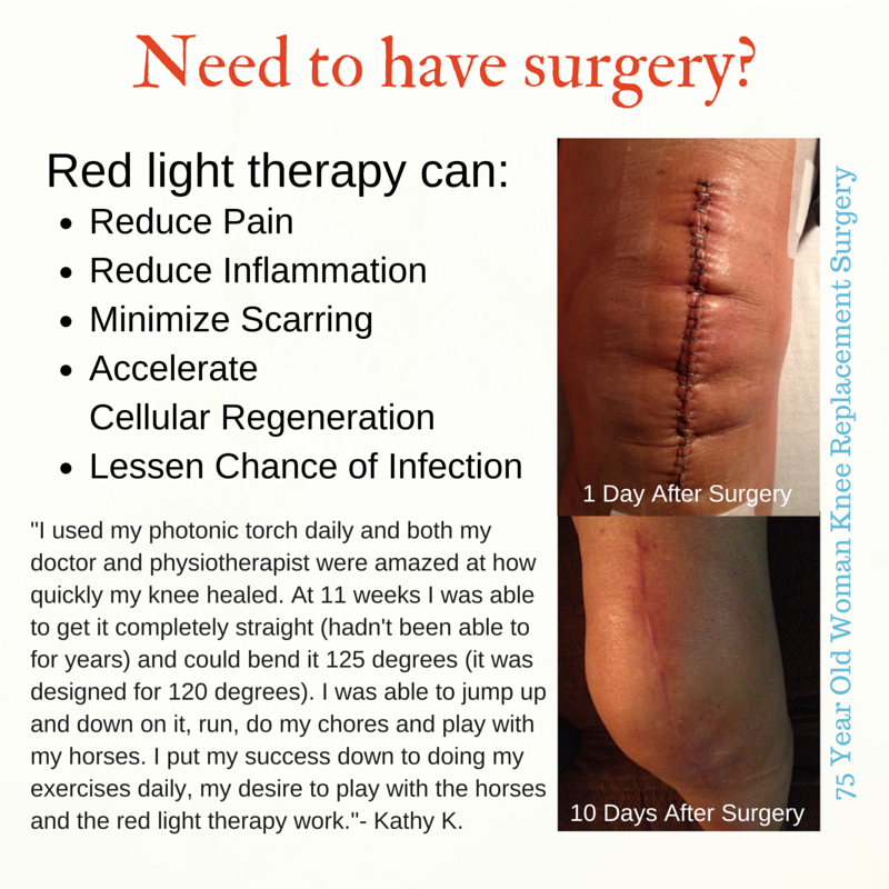 Red Light therapy applied to 10dayold knee replacement