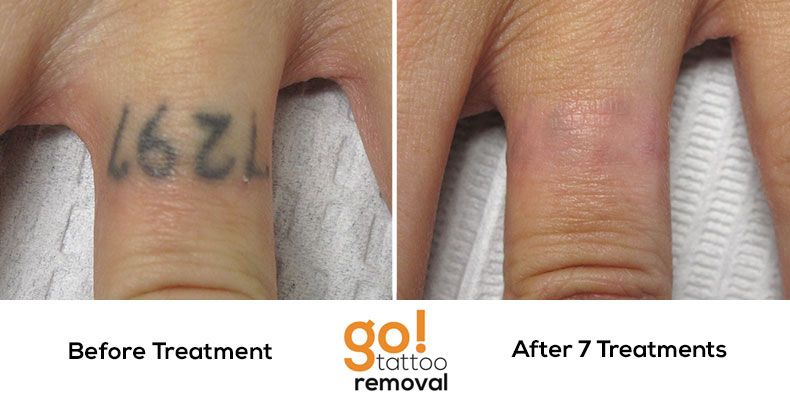 The Home Stretch Of This Tattoo Removal After 7 Treatments The One Performed Right After This Photo This Cover Up Finger Tattoos Tattoo Removal Diy Tattoo