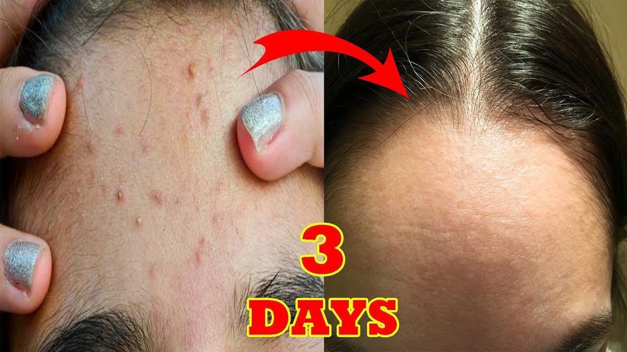 Aspirin on piercing bump before and after  HOW TO REMOVE PIMPLES IN  DAYS  BEST FACE PACK FOR PIMPLE