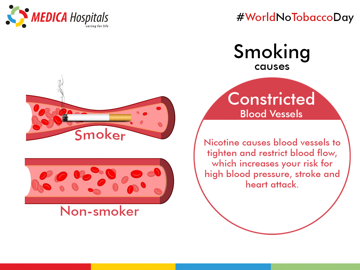 Smoking can cause severe damage to blood vessels  Act before