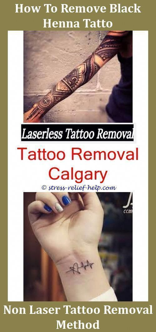 Most Effective Tattoo Removal Color Tattoo Removal Before And After