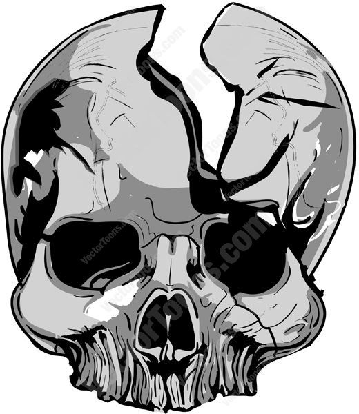 Cracked Gray Skull With Missing Lower Jaw #bone #cranium