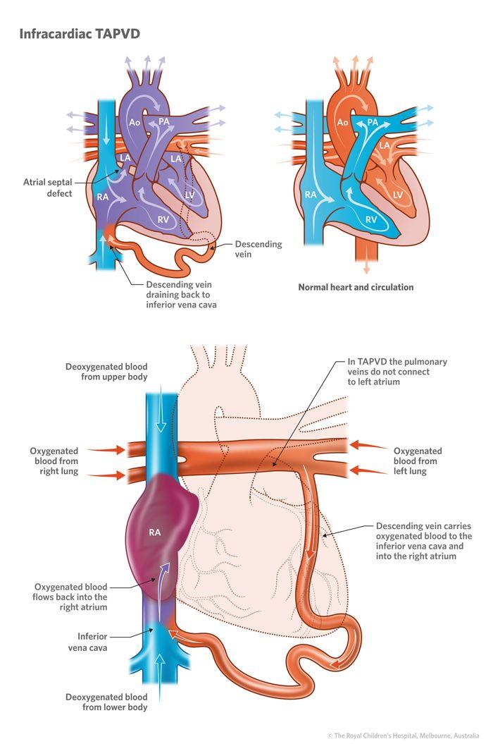 Pulmonary Venous Drainage - Health, Medicine and Anatomy Reference ...
