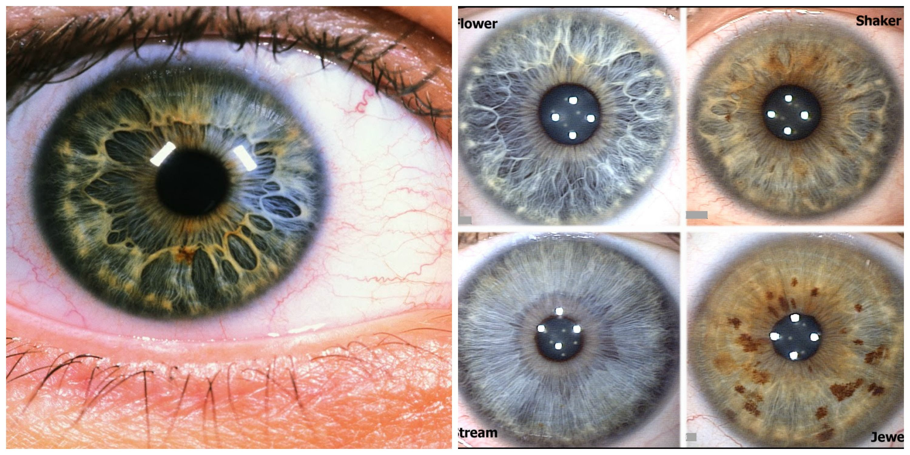 Iridology What Does The Structure Of Your Iris Say About You Iridology Health Heal Iris