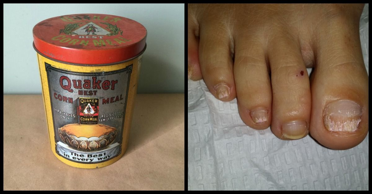 9 Cheap, Easy Home Remedies to Clear Up Yucky Toenail Fungus