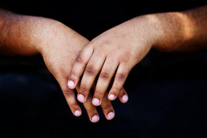 Dark Knuckles Causes And Fixes Futurederm Dark Knuckles Skin Brightening Cream Products Skin Brightening Diy
