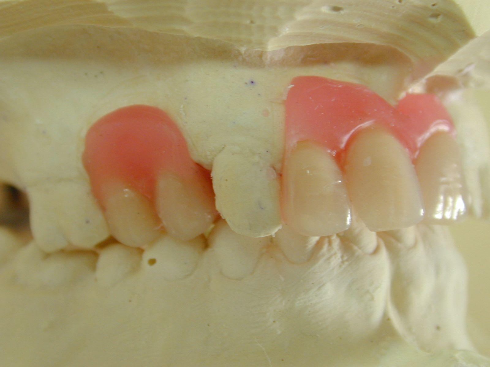 omaha emergency superior ne slideli dentist dental health affordable lincoln dentures