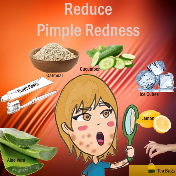 How to reduce redness of pimples fast naturally