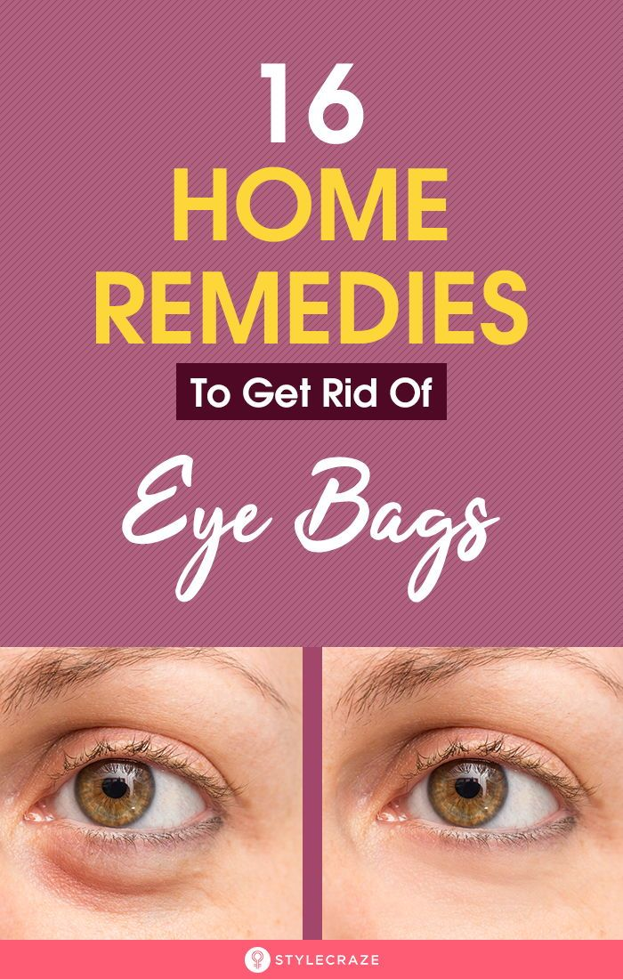 16 Home Remedies To Get Rid Of Eye Bags -   25 how to get rid of bags under eyes ideas